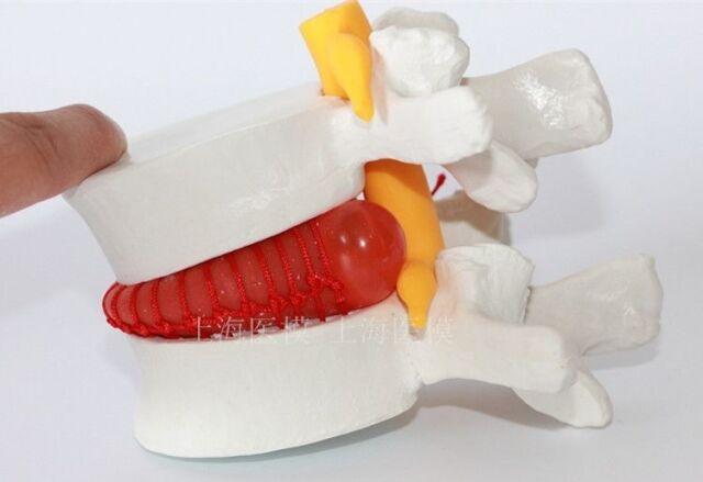 1PCS Human Anatomical Lumbar Vertebra Slipped Disc Medical Model Sale