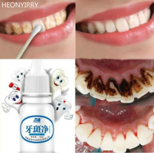 Teeth Whitening Oral Hygiene Cleaning Clareamento Dental Odontologia