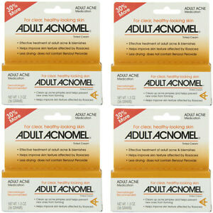 4 Pack - Adult Acnomel Tinted Cream 1.30 oz Yu-Be Lip Therapy Lip Balm Value Pack 0.15oz (5ml)