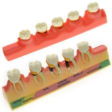 SALE!  Dental Study model Teach Model Periodontal Disease Assort Tooth Typodont