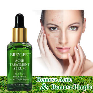 Acne-Treatment-Serum-Face-Skin-Scar-Pimple-Removal-Repair-Tea-Tree-Essence