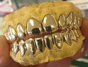 10k Solid Gold Grills With Deep Cut/Permanent Looking 6 Top Custom Fit