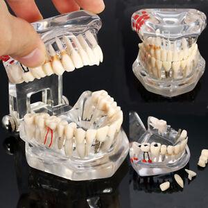 Transparent-Restauration-Implant-Modele-Dentaire-Maladie-Prothese-Typodont-Dents