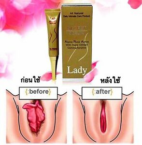 Lady Secret Serum Solve Problem Loose Vagina Leucorrhoea