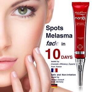 Details about Melasma Chloasma Dark Spot Skin Whitening Brightening  Lightening Arbutin Cream
