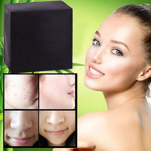 Bambus-Holzkohle-Atherisches-Ol-Seife-Mineral-Schlamm-Pore-Hautpflege-HOT-K5E0
