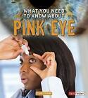 What You Need to Know about Pink Eye by Nancy Dickmann (Paperback / softback, 2016)