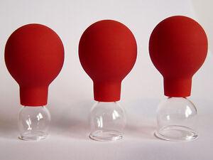 Schröpfgläser 3 im SET 10 15 20 mm Schröpfglas für Gesicht und Narbenbehandlung