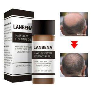Hair-Growth-Essential-Oil-Nourish-Smooth-Dry-Repair-Treatment-Hair-Care-Essence