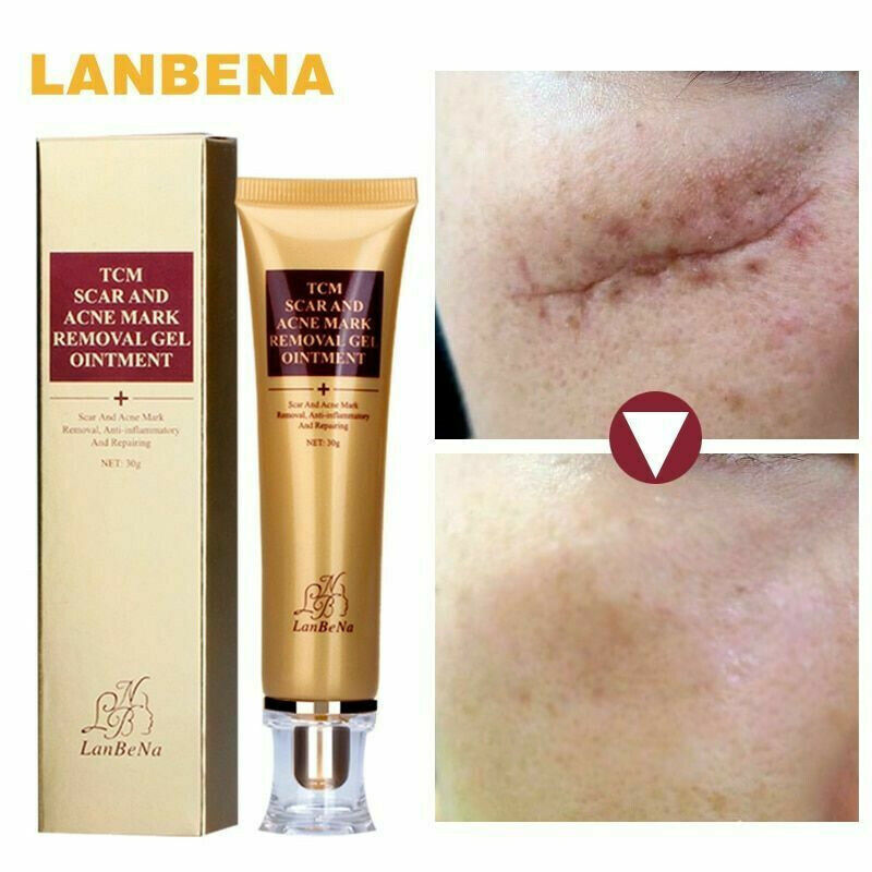 Tcm Scar Removal Cream For Old Scars Stretch Mark Spots Gel For Men Women For Sale Online
