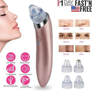 Electric-Facial-Skin-Pore-Cleaner-Blackhead-Vacuum-Suction-Remover-Acne-Cleanser