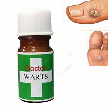All Natural Verruca Wart Corn Remover Cream Salicylic Acid 20 ml FAST SHIP