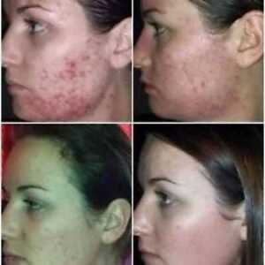 LUMINESCE-Cleanser-amp-Serum-for-Blemishes-Pimples-Acne-Potholes-Scars