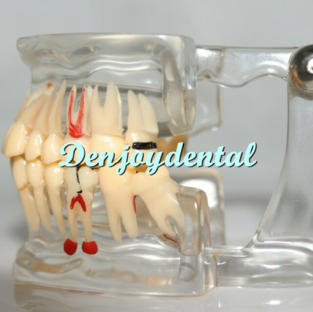 Dental Pathology Study Analysis Demonstration Teeth Model with Missing a Tooth