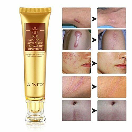Thailand Skin Body Cream Remove Stretch Marks Treatment Scar