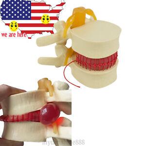 Lumbar Disc Herniation Demonstration Spinal Column Model Medical Massage Lumbar Model Medical Teaching