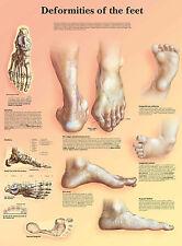Cartel médico A3 – deformaciones de la anatomía humana Pies (libro de texto Patología)