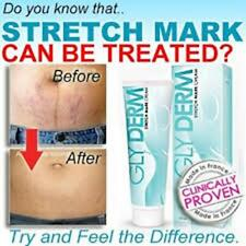Glyderm Stretch Mark Cream Glyderm Remove Skin Line Pregnancy Weight Loss 60 ml