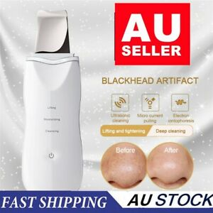 Facial-Ultrasonic-Skin-Scrubber-Spatula-Face-Extractor-Peeling-Deep-Cleaner-Tool