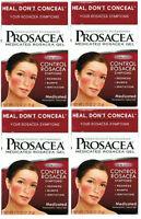 4 Pack Prosacea Medicated Rosacea Topical Gel 0.75 Oz (072959080211)
