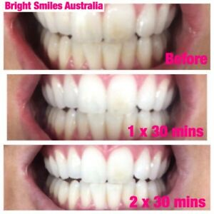 18 Carbamide Peroxide Teeth Whitening Starter Kit Express Hi