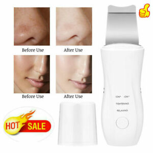 Facial-Ultrasonic-Skin-Scrubber-Spatula-Face-Extractor-Peeling-Tool-Deep-Cleaner
