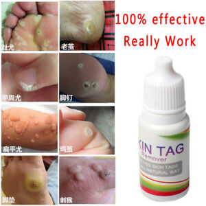 Skin Tag Remover Body Warts Treatment Foot Corn Removal