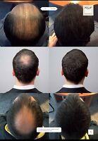 100% Naturell Haarverdichter Haarfaser Haarpulver Schütthaar Haarauffüller 25g