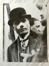 ww2 photo press  Mussolini apres l'attentat 1916        150