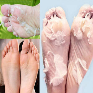New-1Pair-Exfoliating-Peel-Foot-Mask-Baby-Soft-Feet-Remove-Callus-Hard-Dead-Skin