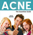 Acne: The Essential Guide by Antonia Mariconda (Paperback, 2009)