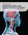 Atlas of Operative Oral and Maxillofacial Surgery by John Wiley & Sons Inc (Hardback, 2015)