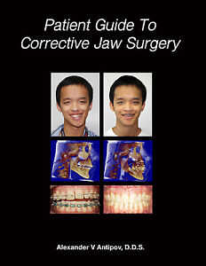 Orthognathic-Surgery-Patient-Guide-amp-Before-After-Corrective-Jaw-Surgery-Cases
