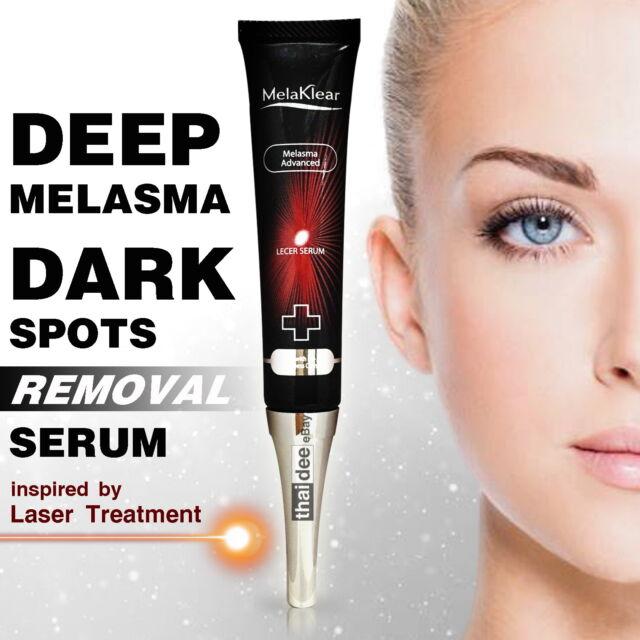 Anti Melasma Serum Whitening Brightening Lightening Bleaching Hyperpigmentaion