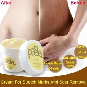 Image is loading Cream-Remove-Scar-Stretch-Marks-Care-Postpartum-Maternity-