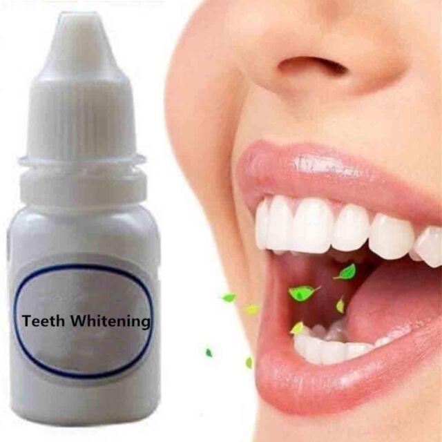 10ml Teeth Whitening Liquid Instant Dental Bleaching Removal Smoke
