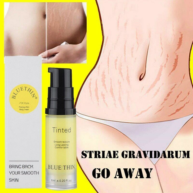 Aichun 120ml Beauty Snail Stretch Marks Cream Pregnancy Scar