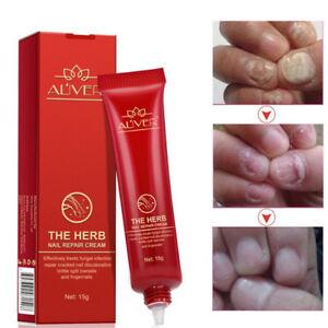 Creme nail repair cream nourishing herb striking fingernail care ...