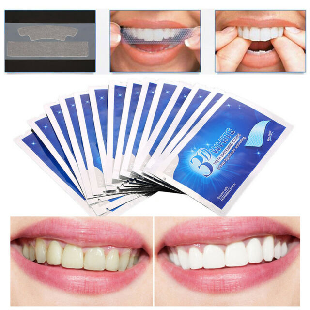 Prodent Ultra White Teeth Whitening Strips Begin Seeing Professional Results For Sale Online Ebay