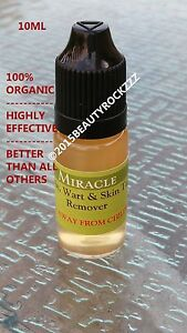 Details about 10ml Mole, Skin Tag, Wart Remover *BEST SELLING on Ebay (It  Works!)