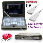 CE approvato, CMS600P2 laptop macchina scanner ad ultrasuoni, ecografo, 2 sonde