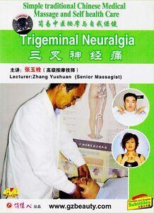 Traditional-Chinese-medical-massage-amp-self-health-care-Trigeminal-Neuralgia-DVD