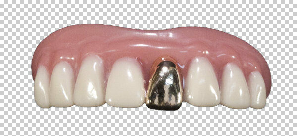 7ce732fb88b Megastore 247 Fake Bling Teeth Fancy Dress Halloween Party Costume Gold  Tooth