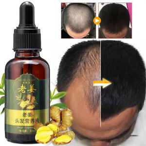 30ml-Croissance-de-Cheveux-Essence-Serum-Gingembre-Huile-Traitement-Anti-chute