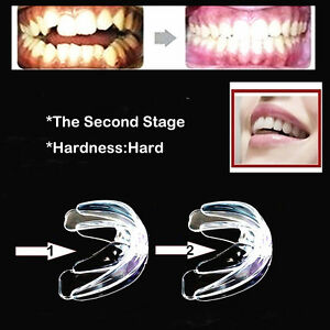Straight Teeth System For Teens Amp Adults Orthodontic