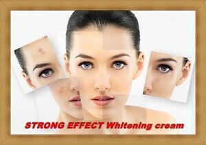 cream for black spots on face