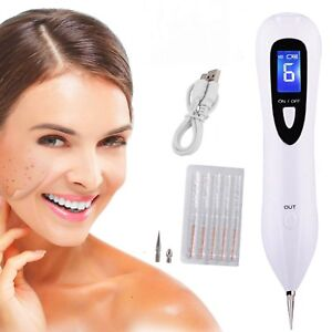 Details about Laser Skin Tag Remover Mole Removal Pen Portable Spot Eraser  Pro Wart Removal