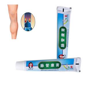 Medical-Varicose-Veins-Treatment-Acid-Leg-Bilges-Itching-Lumps-Vasculitis-Cream