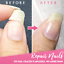 Cracked-Nail-Repair-Gel-Armor-Nail-Gel-Coat-Growth-Treatment-Strong-Repair-UK thumbnail 5