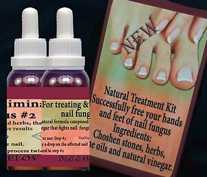 Natural Treatment Nail Fungal Infection, Anti-fungal Kit with ...